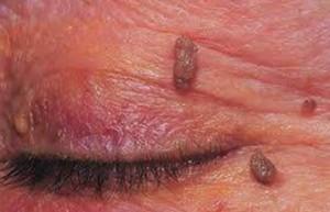Θήλωμα στο βλέφαρο από HPV ιό