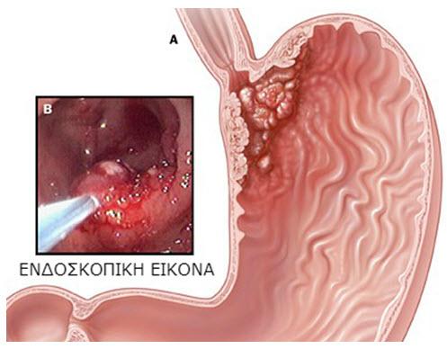 Καρκίνος στομάχου - Γαστροσκόπηση