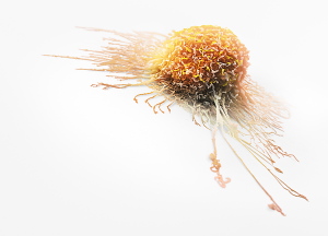 Invasive-Cancer-Cell