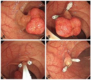 Αφαίρεση πολύποδα με ευρύ μίσχο. Τοποθέτηση clips για αποφυγή αιμορραγίας