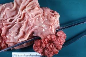 Χειρουργικό παρασκεύασμα γαστρεκτομής για μεγάλο πολύποδα