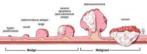 Η εξέλιξη του πολύποδα σε καρκίνο