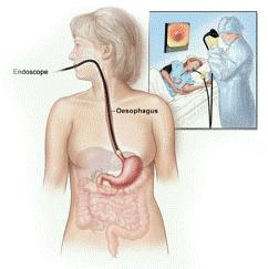 oisofagitida16