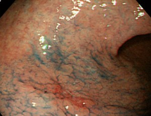 dysplasia of the gastric mucosa