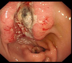 elikobaktiridio26