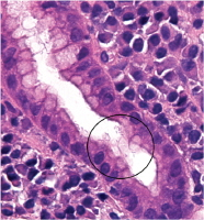histological diagnosis of chronic gastritis with Helicobacter pylori