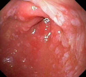 intestinal metaplasia of the gastric mucosa