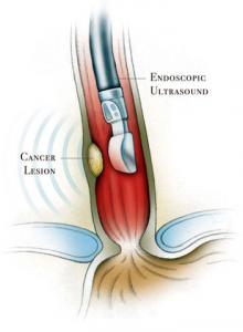 endoskopiki14
