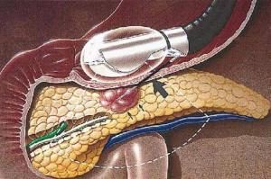 endoskopiki7
