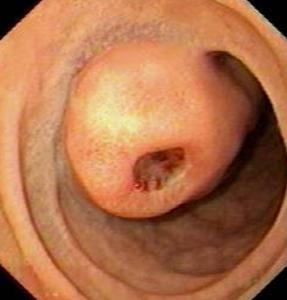 enteroskopisi11