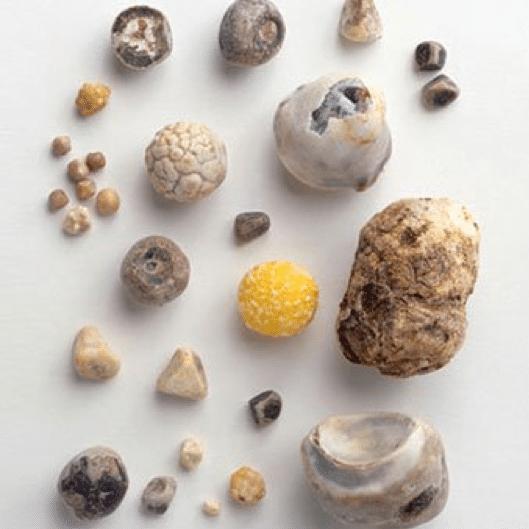 Χολόλιθοι