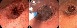 Αιμόσταση σε αιμορραγική γαστρίτιδα με APC
