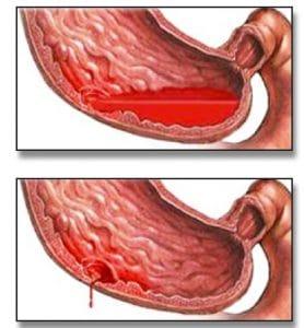 Αίμα στο στομάχι