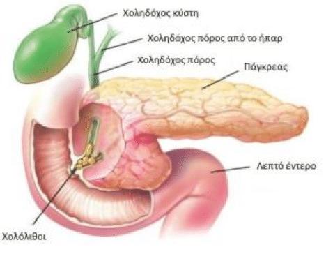 Οξεία παγκρεατίτιδα