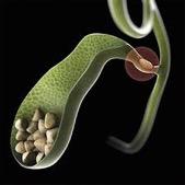 Μηχανισμός γένεσης χολοκυστίτιδας