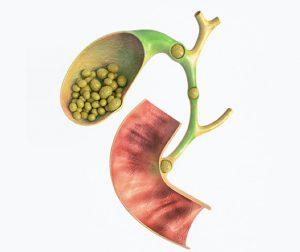 Παθοφυσιολογία της χολοκυστίτιδας