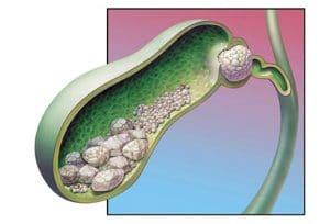 Ενσφήνωση λίθου - Χολοκυστίτιδα