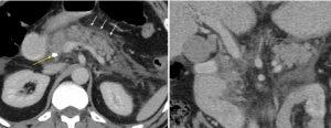 Παγκρεατίτιδα μετά από ERCP