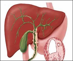 Σκληρυντική χολαγγειίτιδα