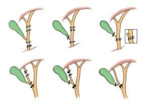 Τύποι ιατρογενών κακώσεων χοληφόρων στη λαπαροσκοπική χολοκυστεκτομή