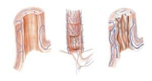 Σχηματισμός κιρσών οισοφάγου