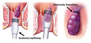 Περίδεση αιμορροΐδων με ελαστικό δακτύλιο