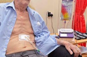 Διαρκής σίτιση με αντλία μέσω γαστροστομίας