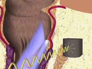 Απόφραξη αιμορροϊδικής αρτηρίας με διοδικό Laser