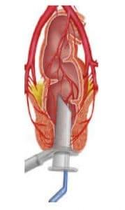 Εντόπιση αιμορροϊδικής αρτηρίας με doppler