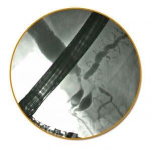 Στένωση χοληδόχου πόρου και παγκρεατικού πόρου από καρκίνο κεφαλής παγκρέατος. Double duct sign