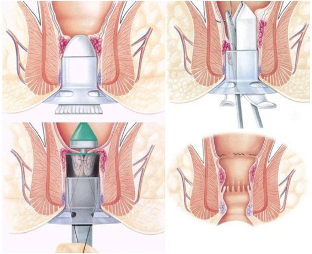 Αιμορροϊδεκτομή με τη μέθοδο Longo
