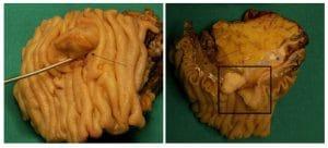 Χειρουργικό παρασκεύασμα καρκίνου θηλής Vater