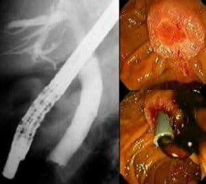 Τοποθέτηση stent για νεόπλασμα θηλής Vater