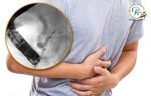 Χρόνιος κοιλιακός πόνος σε ασθενή με διαχωρισμένο πάγκρεας