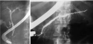 Διαχωρισμένο πάγκρεας (Divisum) - Διάγνωση με ERCP