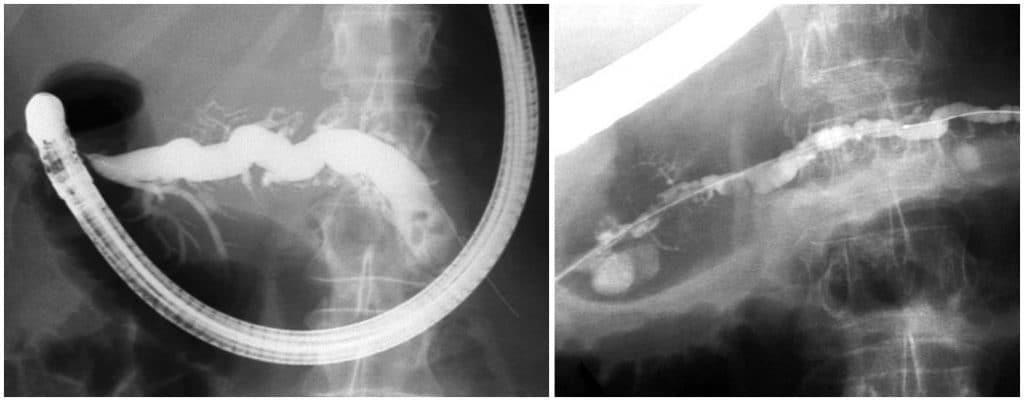 Ενδοσκοπική θεραπεία σε ασθενή με διαχωρισμένο πάγκρεας (divisum) και χρόνια παγκρεατίτιδα