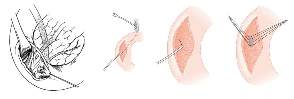 Χειρουργική σφιγκτηροτομή της μικρής θηλής