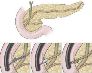 Διαχωρισμένο πάγκρεας (divisum) - Ενδοσκοπική θεραπεία