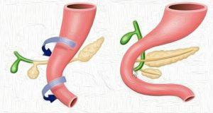Διαχωρισμένο πάγκρεας (Divisum) - Εμβρυική ανάπτυξη