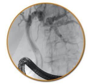 Τοποθέτηση μεταλλικού stent