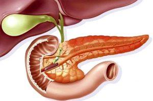 Οιδηματώδης οξεία παγκρεατίτιδα