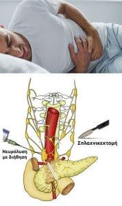 Ανακούφιση παγκρεατικού πόνου με νευρόλυση ή διήθηση