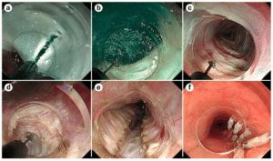 Στάδια της ενδοσκοπικής μυοτομής (POEM) για αχαλασία (ενδοσκοπικές εικόνες)*