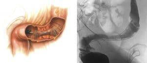 Αυλοποίηση φραγμένου παχέος εντέρου από όγκο με τοποθέτηση ενδοπρόθεσης