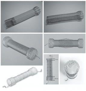 Μεταλλικές ενδοπροθέσεις σχεδιασμένες για το παχύ έντερο