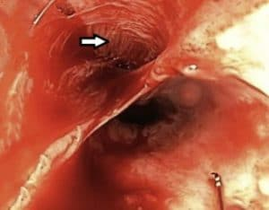 Ενδοσκοπική εικόνα διάτρησης οισοφάγου