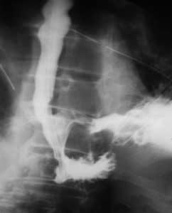 Ακτινολογική εικόνα διάτρησης οισοφάγου μετά από μυοτομή