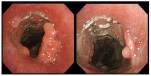 Υπερανάπτυξη του όγκου κεντρικά της ενδοπρόθεσης
