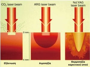 Βιολογικές δράσεις διαφορετικών τύπων Laser