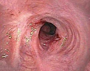 Στένωση μετά από σκληροθεραπεία